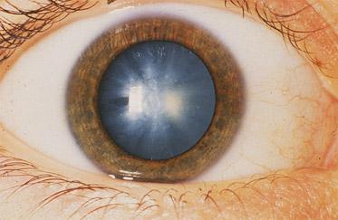 cataracts 1