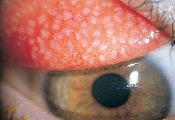 Giant Papillary Conjunctivitis | Kershaw & Szabo Optometrists