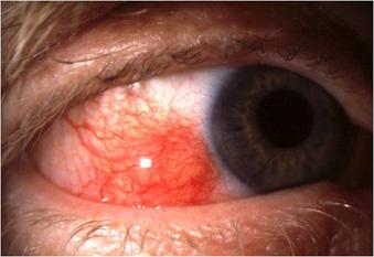 nodular episcleritis
