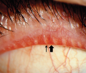 how to clear block glands in the eye